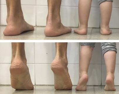 traumatologiapediatrica-pie-plano-fisiologico