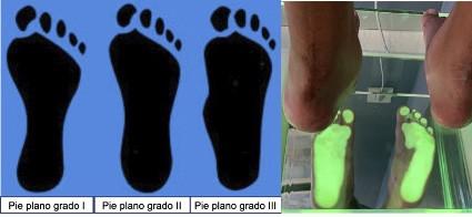 traumatologiapediatrica-pie-plano-infantil-grado-final