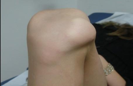 raumatologiapediatrica-inestabilidad-rotula-luxacion-patela.jpg