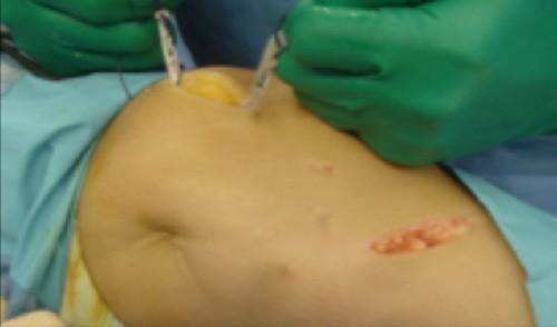 traumatologiapediatrica-inestabilidad-rotula-tecnicas-quirurgicas-Knorr-2.jpg