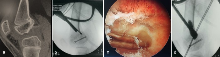 traumatologiapediatrica-epifisiodesis-fig1