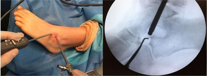 dr knorr sinostosis del tarso cirugia percutanea
